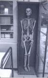 """""""Скелет русского офицера, смертельно раненого в битве Ножан-сюр-Сен в 1814 году и умершего в Генеральной Больнице. Г-н Беланже, фармацевт с улицы дю Вал, собрал скелет таким, как он есть. Передано колледжу от Г-ном Беланже, фармацевтом в Провене."""""""