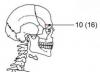 Рис. 14. Повреждение черепа князя Андрея Боголюбского - справа