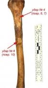 Рис. 17. Удар 4 (повреждения 6, 7) и 6 (повреждение 10)